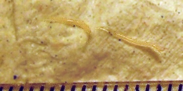 Threadworm